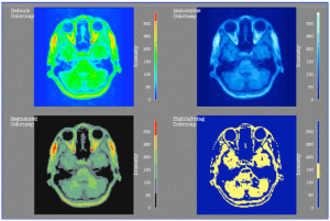 Head MRI Colormap