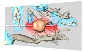 Visualization from Christian's 2011 VisWeek paper showing RF applicator, tumor, the approximated ablation zone in red and thermal cooling of blood vessels in blue.