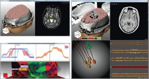 Alexander Bock, Norbert Land, Gianpaolo Evangelista, Ralph Lehrke, and Timo Ropinski: Guiding Deep Brain Stimulation Interventions by Fusing Multimodal Uncertainty Regions