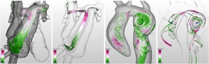 Silvia Born, Michael Markl, Matthias Gutberlet, Gerik Scheuermann: Illustrative Visualization of Cardiac and Aortic Blood Flow from 4D MRI Data