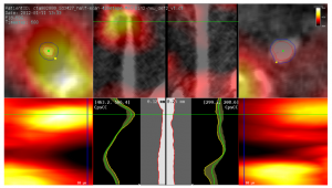 Comparative Visualization of Tracer Uptake in In Vivo Small Animal PET/CT Imaging of the Carotid Arteries – S. Diepenbrock